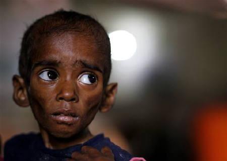 India-hunger-crisis